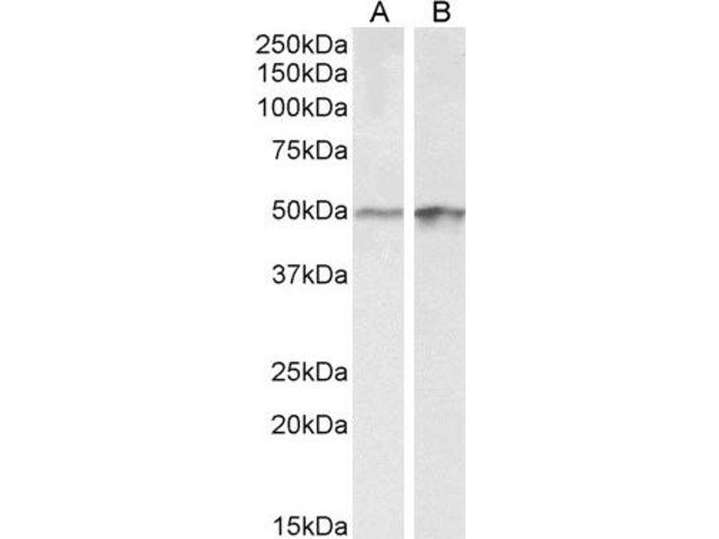 Western Blotting (WB) image for anti-E2F Transcription Factor 4, P107/p130-Binding (E2F4) (Internal Region) antibody (ABIN2560523)