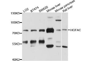 Image no. 1 for anti-Hepatocyte Growth Factor Activator (HGFA) antibody (ABIN6566778)