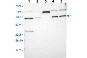 Image no. 2 for anti-Histidine Rich Calcium Binding Protein (HRC) antibody (ABIN5580129)
