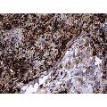 Immunohistochemistry: Galectin-3 Antibody (1C7) [NBP2-45618] - Analysis of Carcinoma of Human lung tissue.(Heat-induced epitope retrieval by 1 mM EDTA in 10mM Tris, pH8.5, 120C for 3min)