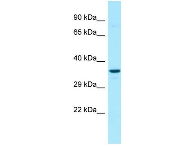 Image no. 2 for anti-Glucose 6-Phosphatase, Catalytic 3 (G6PC3) (N-Term) antibody (ABIN2789897)