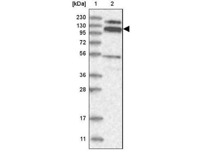 Western Blotting (WB) image for anti-RNA Binding Motif Protein 15B (RBM15B) antibody (ABIN4349584)
