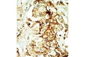 Immunohistochemistry (Paraffin-embedded Sections) (IHC (p)) image for anti-MAPK10 antibody (Mitogen-Activated Protein Kinase 10) (N-Term) (ABIN359417)