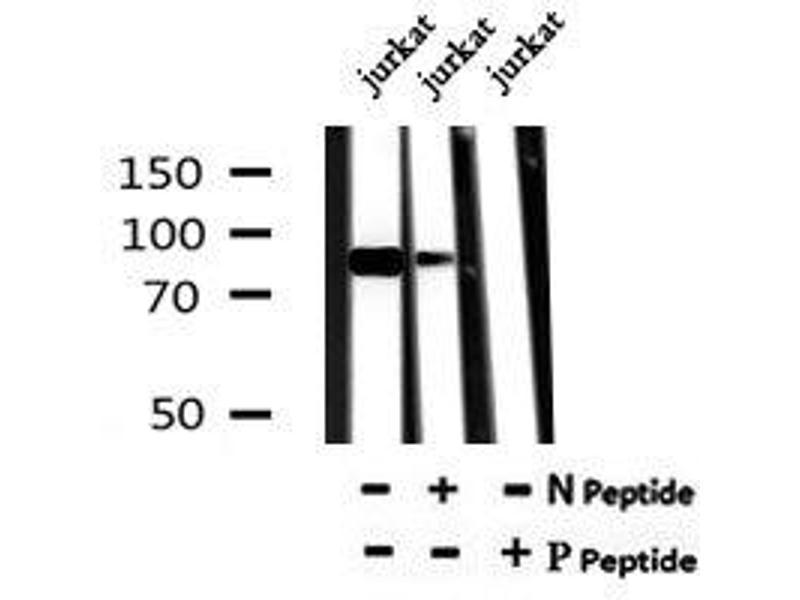 Image no. 4 for anti-Neurotrophic Tyrosine Kinase, Receptor, Type 1 (NTRK1) (pTyr791) antibody (ABIN6269783)