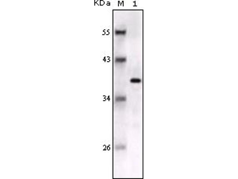 Western Blotting (WB) image for anti-S100 Calcium Binding Protein B (S100B) antibody (ABIN614504)
