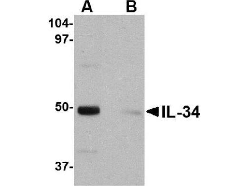 Western Blotting (WB) image for anti-Interleukin 34 (IL34) (Center) antibody (ABIN4327330)