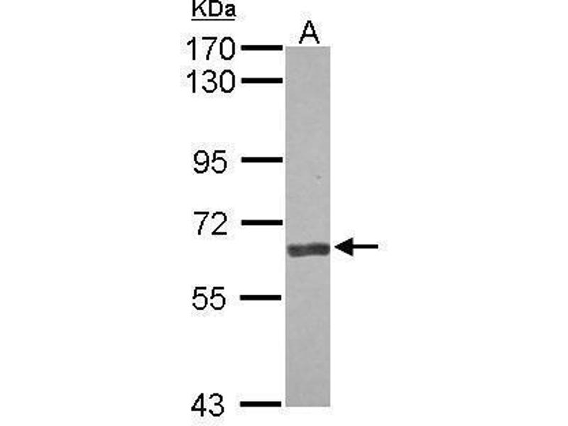 Western Blotting (WB) image for anti-Angiopoietin 2 antibody (ANGPT2) (Center) (ABIN2854898)