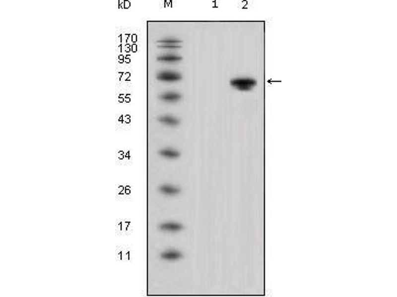 Western Blotting (WB) image for anti-Wingless-Type MMTV Integration Site Family, Member 5A (WNT5A) antibody (ABIN969460)