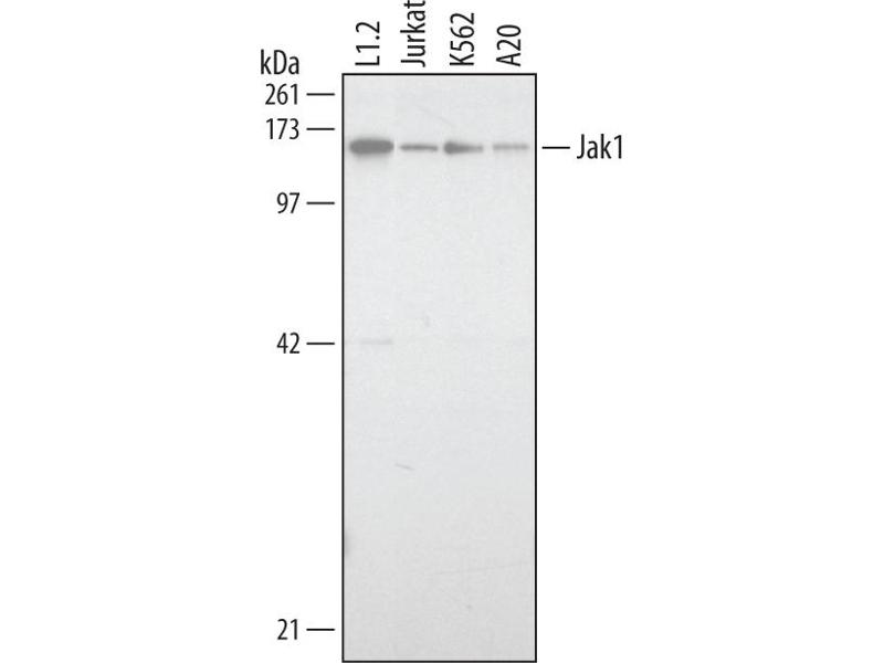 Western Blotting (WB) image for anti-Janus Kinase 1 (JAK1) (AA 32-286) antibody (ABIN4900202)