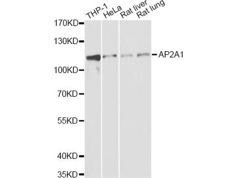 Western Blotting (WB) image for anti-Adaptor-Related Protein Complex 2, alpha 1 Subunit (AP2A1) antibody (ABIN2561135)
