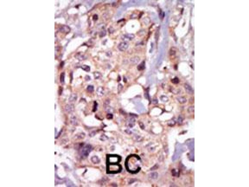 Immunohistochemistry (IHC) image for anti-Nuclear Receptor Subfamily 4, Group A, Member 3 (NR4A3) (AA 175-205), (Center) antibody (ABIN392111)