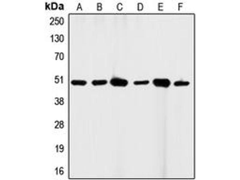 Western Blotting (WB) image for anti-Fas (TNF Receptor Superfamily, Member 6) (FAS) (C-Term) antibody (ABIN2704623)