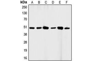 Western Blotting (WB) image for anti-FAS antibody (Fas (TNF Receptor Superfamily, Member 6)) (C-Term) (ABIN2704623)