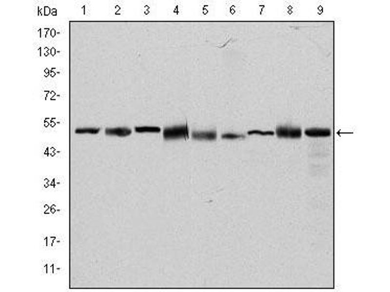 Western Blotting (WB) image for anti-CCT2 antibody (Chaperonin Containing TCP1, Subunit 2 (Beta)) (ABIN1109212)