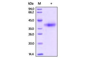SDS-PAGE (SDS) image for Mesothelin (MSLN) (Active) protein (Biotin,His tag) (ABIN2444164)