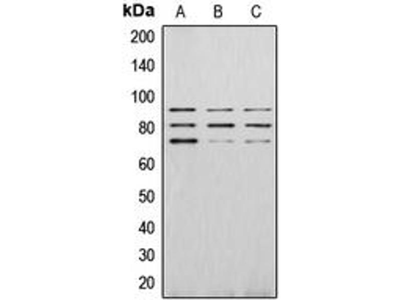 Western Blotting (WB) image for anti-P21-Activated Kinase 4 (PAK4) (C-Term), (pSer474) antibody (ABIN2705100)