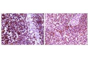 Immunohistochemistry (Paraffin-embedded Sections) (IHC (p)) image for anti-Mitogen-Activated Protein Kinase Kinase 4 (MAP2K4) antibody (ABIN449949)