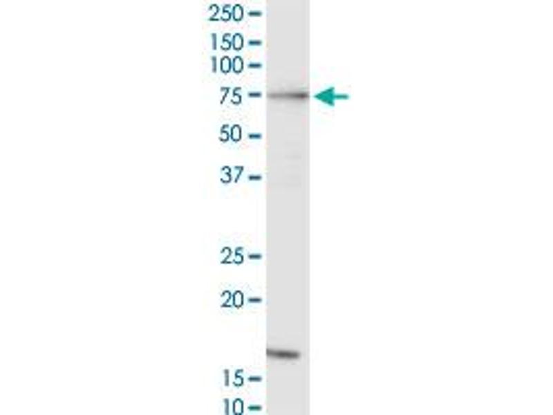 Western Blotting (WB) image for anti-RAF1 antibody (V-Raf-1 Murine Leukemia Viral Oncogene Homolog 1) (AA 1-130) (ABIN519618)