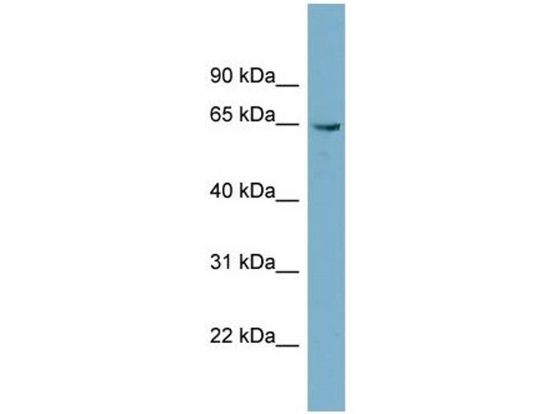 Western Blotting (WB) image for anti-Phosphoglucomutase 3 antibody (PGM3) (N-Term) (ABIN504072)