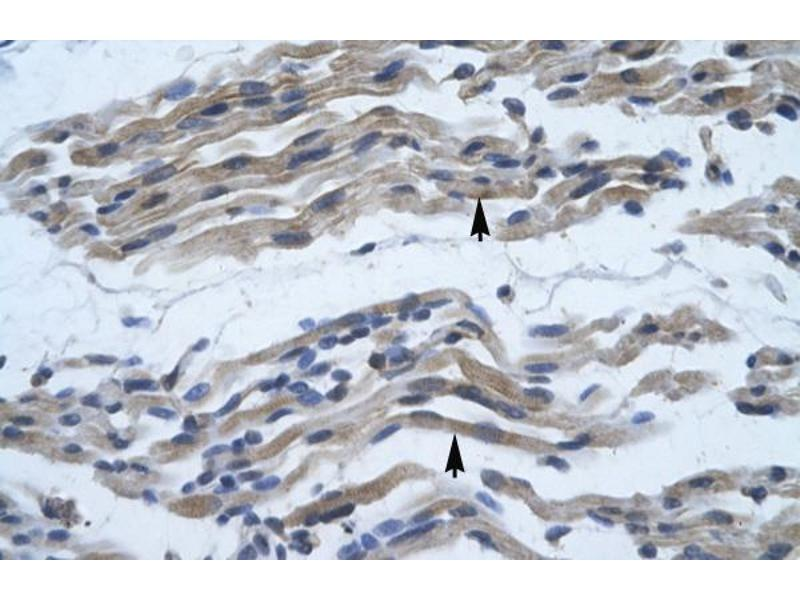 Immunohistochemistry (IHC) image for anti-NFKB2 antibody (Nuclear Factor of kappa Light Polypeptide Gene Enhancer in B-Cells 2 (p49/p100)) (C-Term) (ABIN182483)