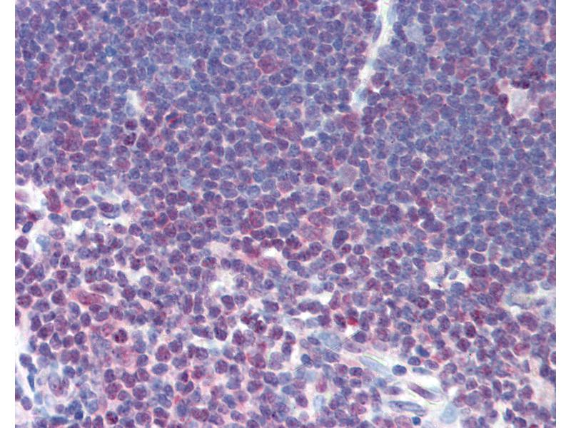 Immunohistochemistry (IHC) image for anti-Nuclear Factor of Activated T-Cells, Cytoplasmic, Calcineurin-Dependent 1 (NFATC1) (AA 263-282) antibody (ABIN241575)