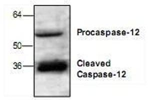 Western Blotting (WB) image for anti-Caspase 12 (Gene/pseudogene) (CASP12) antibody (ABIN223032)