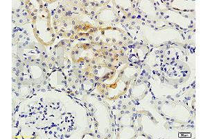 Immunohistochemistry (IHC) image for anti-Protein Kinase C, beta (PRKCB) (AA 620-673) antibody (ABIN727010)