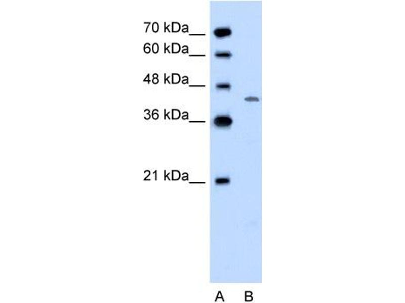 Western Blotting (WB) image for anti-DHOdehase (C-Term) antibody (ABIN310258)