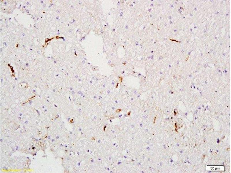 Immunohistochemistry (Paraffin-embedded Sections) (IHC (p)) image for anti-Coagulation Factor VIII (F8) antibody (ABIN668601)