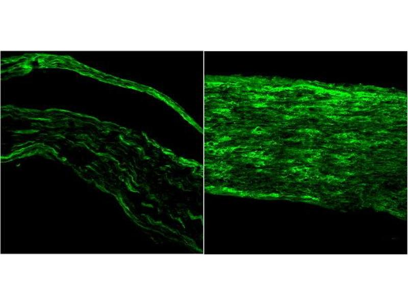 image for anti-Brain-Derived Neurotrophic Factor (BDNF) (Internal Region) antibody (ABIN5609809)