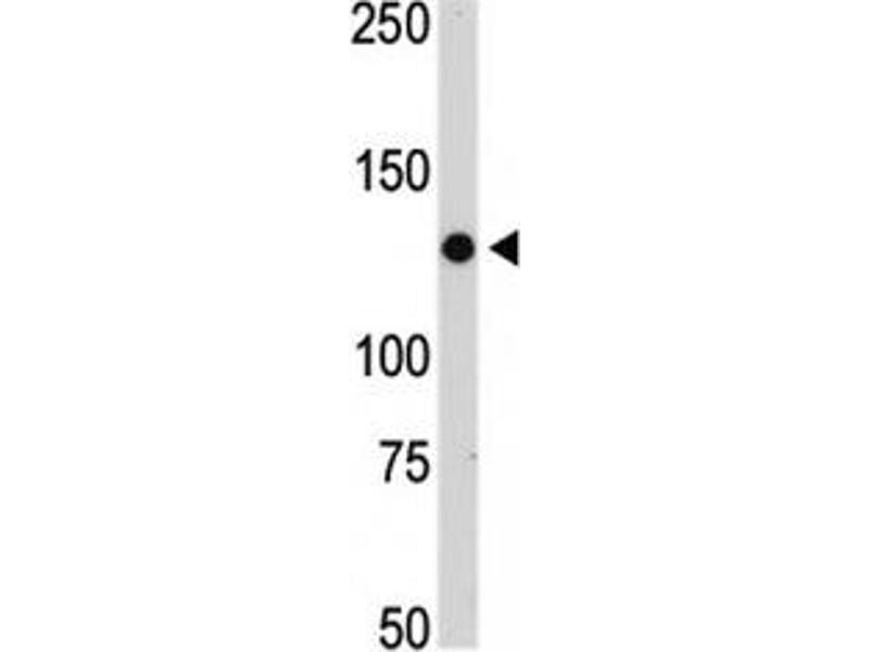 Western Blotting (WB) image for anti-Janus Kinase 2 (JAK2) (AA 1101-1132) antibody (ABIN3031513)
