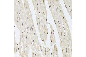 Image no. 1 for anti-Achalasia, Adrenocortical Insufficiency, Alacrimia (AAAS) antibody (ABIN6136308)