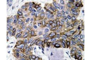 Immunohistochemistry (Paraffin-embedded Sections) (IHC (p)) image for anti-Chemokine (C-C Motif) Ligand 5 (CCL5) antibody (ABIN446965)