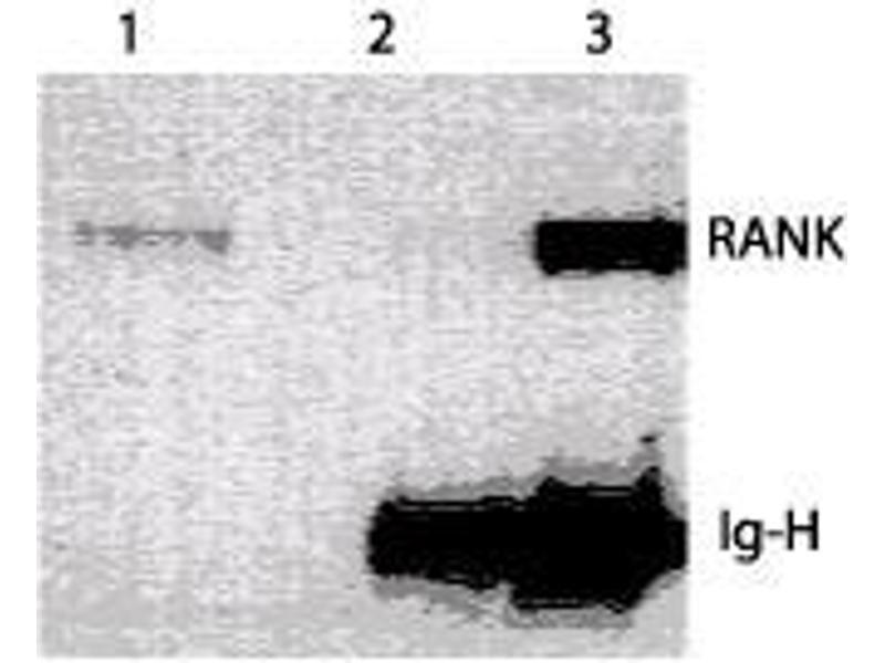 image for anti-RANK (CD265) (Extracellular Domain) antibody (ABIN208201)