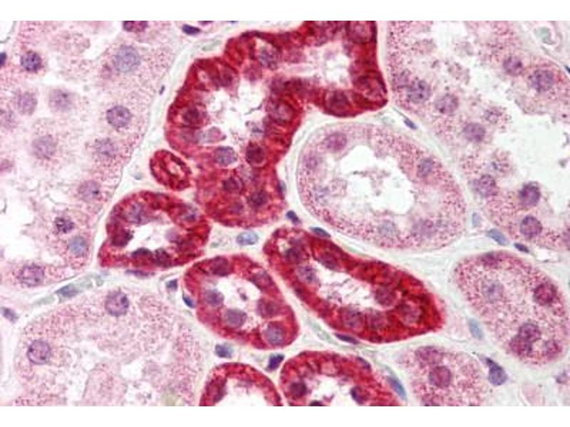 Immunohistochemistry (IHC) image for anti-SMT3 Suppressor of Mif Two 3 Homolog 1 (S. Cerevisiae) (SUMO1) (N-Term) antibody (ABIN214521)