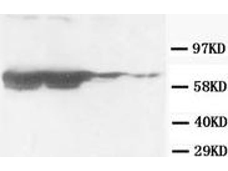 Western Blotting (WB) image for anti-GFAP antibody (Glial Fibrillary Acidic Protein) (ABIN1107345)