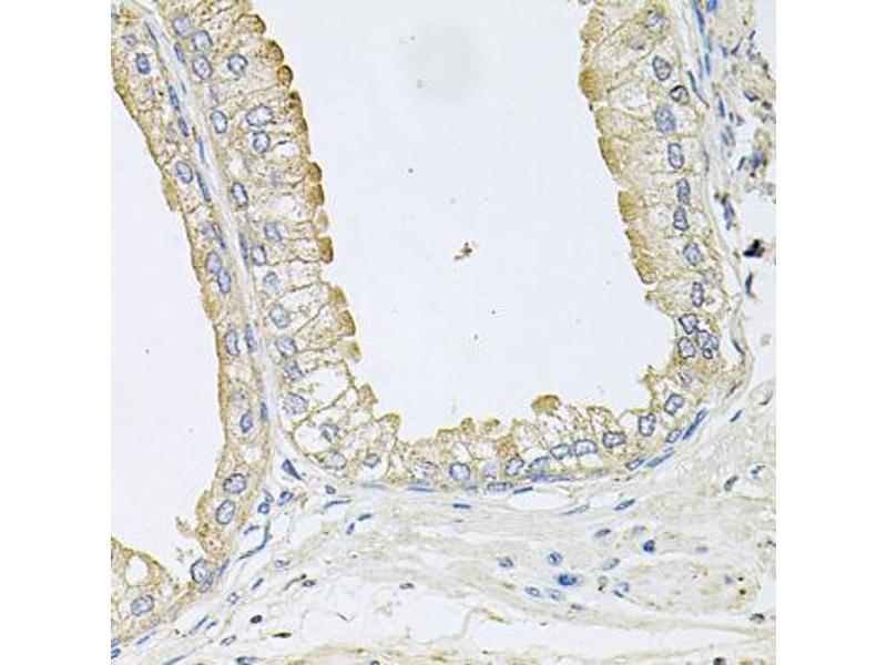 Image no. 2 for anti-Ankylosis, Progressive Homolog (Mouse) (ANKH) antibody (ABIN6572062)
