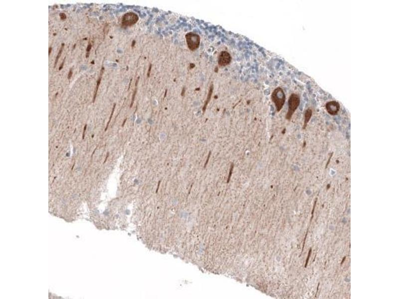 Immunohistochemistry (Paraffin-embedded Sections) (IHC (p)) image for anti-Jagged 2 (JAG2) antibody (ABIN4327861)