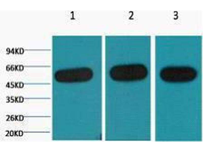 Western Blotting (WB) image for anti-TUBB antibody (Tubulin, beta) (ABIN3181209)