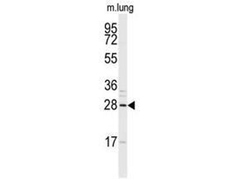 Image no. 1 for anti-Snail Homolog 1 (Drosophila) (SNAI1) (N-Term) antibody (ABIN357453)