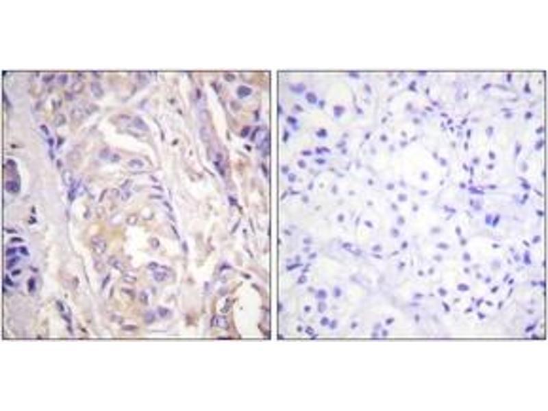 Immunohistochemistry (IHC) image for anti-Mitogen-Activated Protein Kinase Kinase 1 (MAP2K1) (AA 252-301) antibody (ABIN1532460)