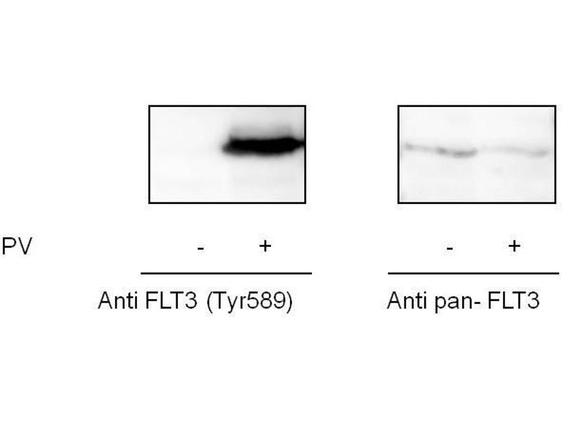 Image no. 2 for Fms-Related tyrosine Kinase 3 (FLT3) ELISA Kit (ABIN6730594)