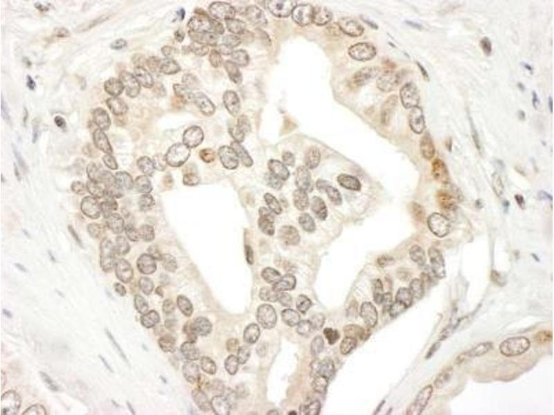 Immunohistochemistry (Paraffin-embedded Sections) (IHC (p)) image for anti-Janus Kinase 2 (JAK2) (AA 1082-1132) antibody (ABIN439657)