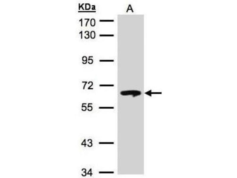Western Blotting (WB) image for anti-Glucosidase, Beta, Acid (GBA) (C-Term) antibody (ABIN442242)