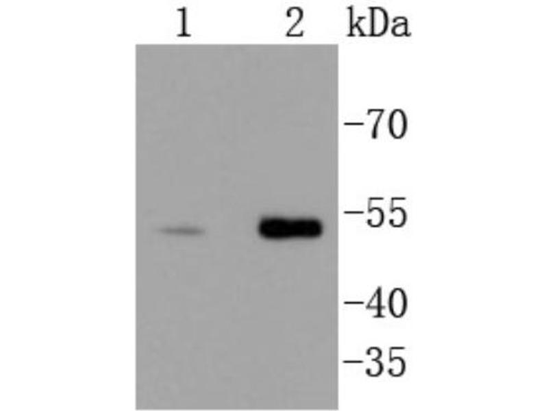 Western Blotting (WB) image for anti-Checkpoint Kinase 1 (CHEK1) (C-Term) antibody (ABIN5952369)