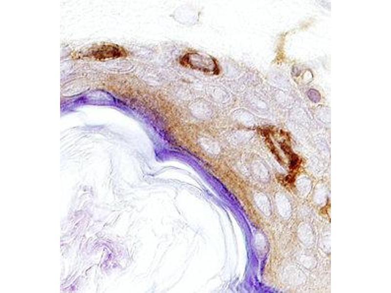 Immunohistochemistry (IHC) image for anti-JAK1 antibody (Janus Kinase 1) (AA 32-286) (ABIN4900202)