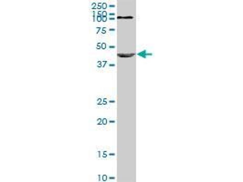 Immunohistochemistry (IHC) image for anti-Nodal Homolog (Mouse) (NODAL) (AA 275-347) antibody (ABIN396555)