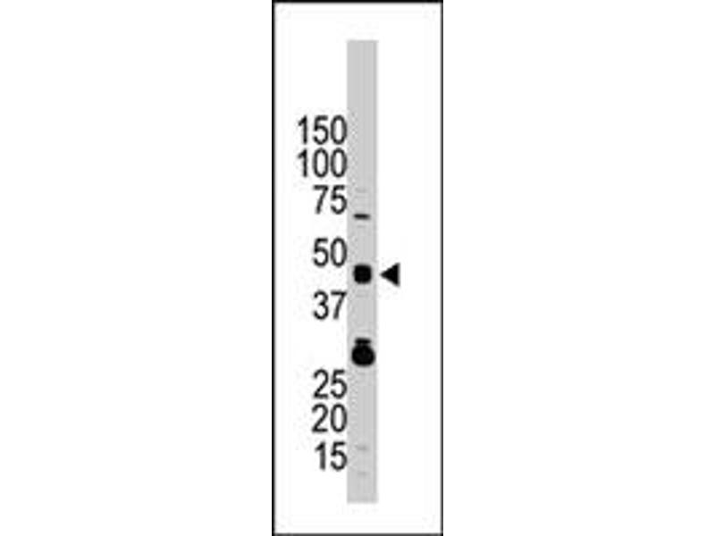 Image no. 2 for anti-Tribbles Homolog 3 (Drosophila) (TRIB3) antibody (ABIN544960)