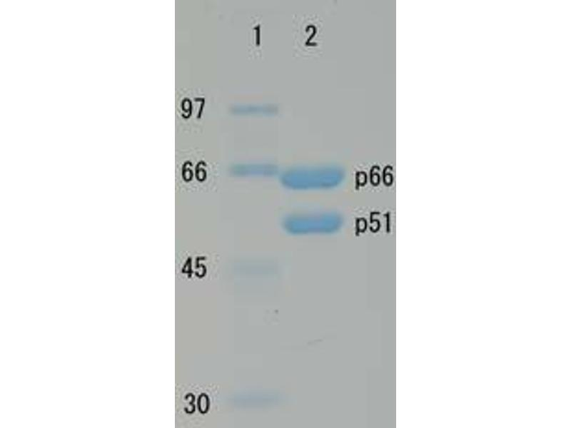 SDS-PAGE (SDS) image for HIV-1 Reverse Transcriptase (HIV1RT) (Active) protein (ABIN2452197)