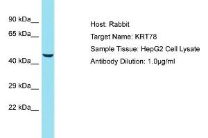 Image no. 1 for anti-Keratin 78 (KRT78) (Middle Region) antibody (ABIN2791630)